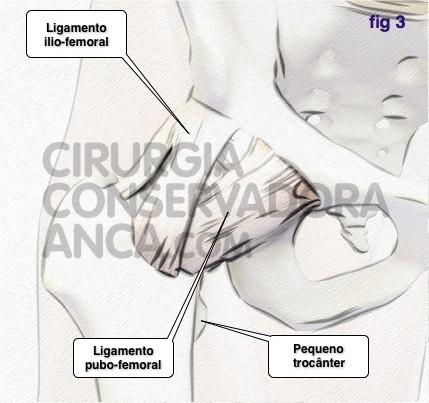 cirurgiaconservadoraanca anca norma fig.3