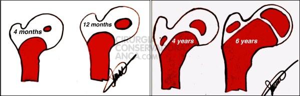Desenvolvimento progressivo dos núcleos de ossificação do fémur proximal desde os 4 meses até aos 6 anos