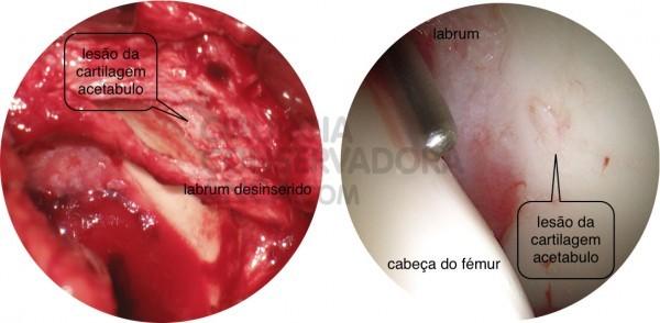 esquerda: lesão grave da cartilagem direita: visão artroscópica de uma lesão da cartilagem acetabular
