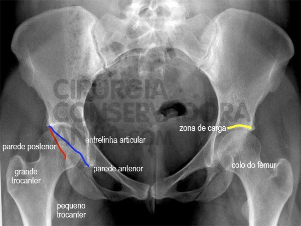 Rx - anca normal- figura 3 - paulo rego